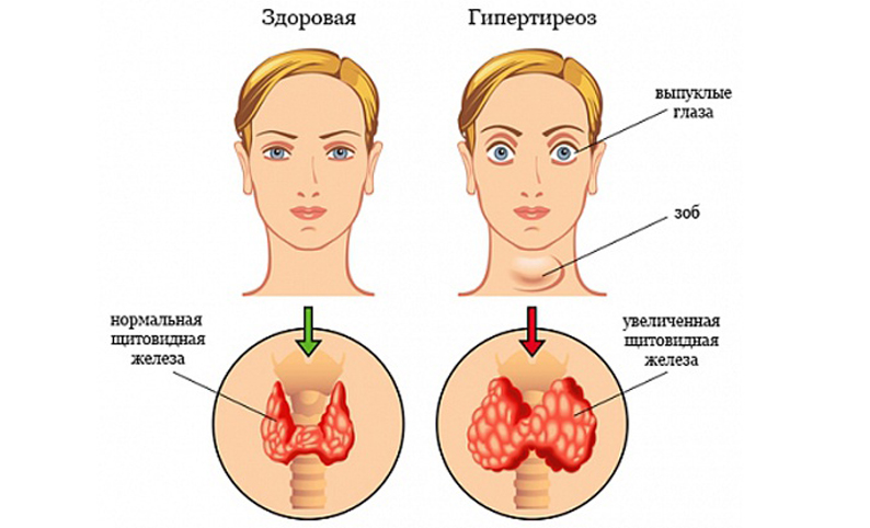 tiroiditas ir hipertenzija
